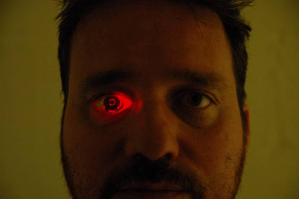 Rob Spence hat anstelle seines rechten Auges eine Kamera.